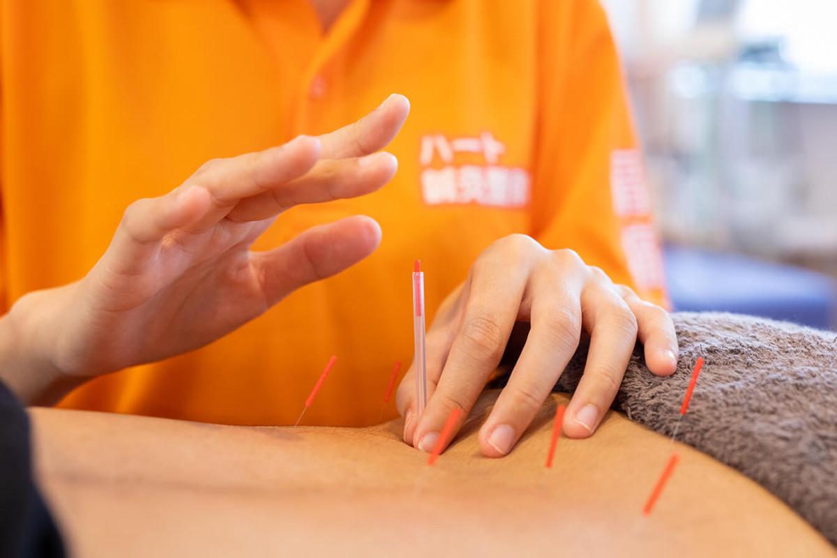 鍼灸師の施術イメージ