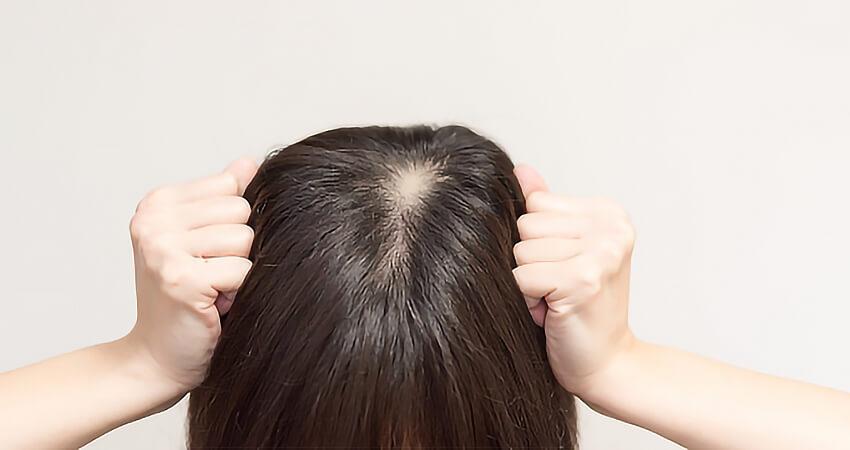 円形性脱毛症の鍼灸メインイメージ