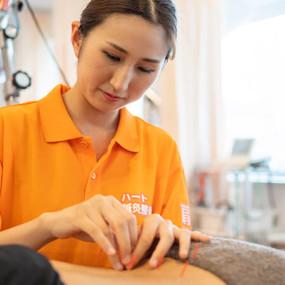 円形性脱毛症の鍼灸