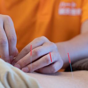 鍼施術のメカニズム